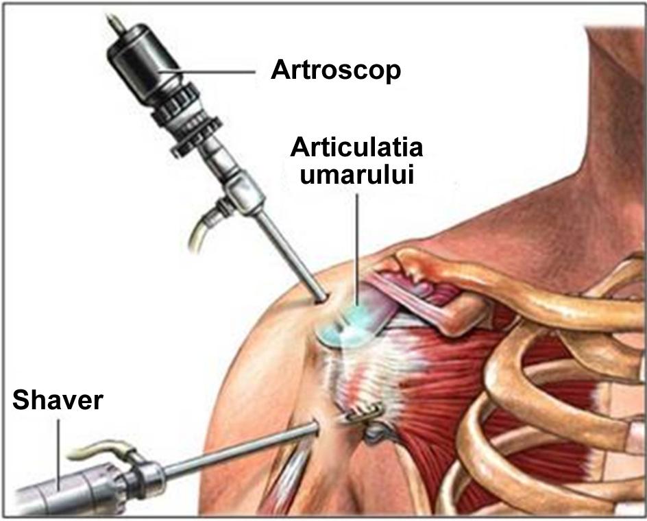 artro2